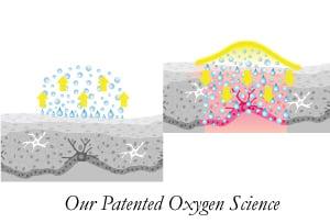 oxygen science